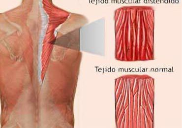 Cúrate así de un desgarro muscular
