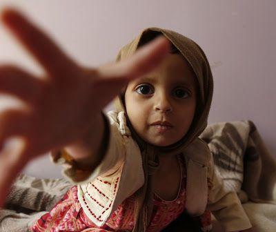 La famine au Yémen est créée de toute pièce à Washington et Riyadh