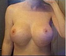 34EE Breast Size, too large and saggy Boobs