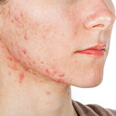 Why are Ayurveda Treatments Used For Psoriasis?