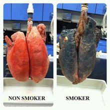 Non Smoker vs Smoker