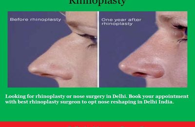 Best Rhinoplasty Surgery India – Performed for aesthetic and medical reasons alike!