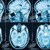 Covid-19 : des lésions cérébrales retrouvées chez des malades présentant peu ou pas de symptômes