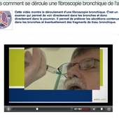 Video fibroscopie bronchique de l'adulte - Doc DORFFER Patrick