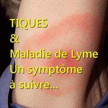 TIQUES : un symptôme qui doit vous mettre la puce à l'oreille