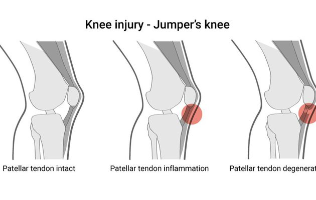 Knee tendinitis: Its reasons and its therapy