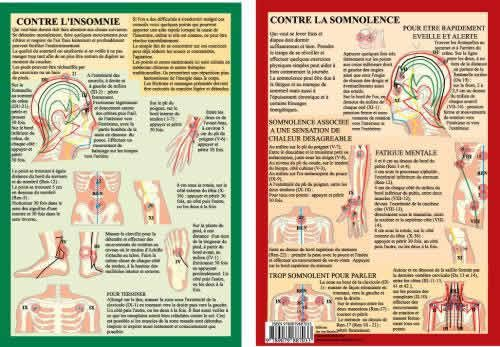 Point acupuncture sommeil