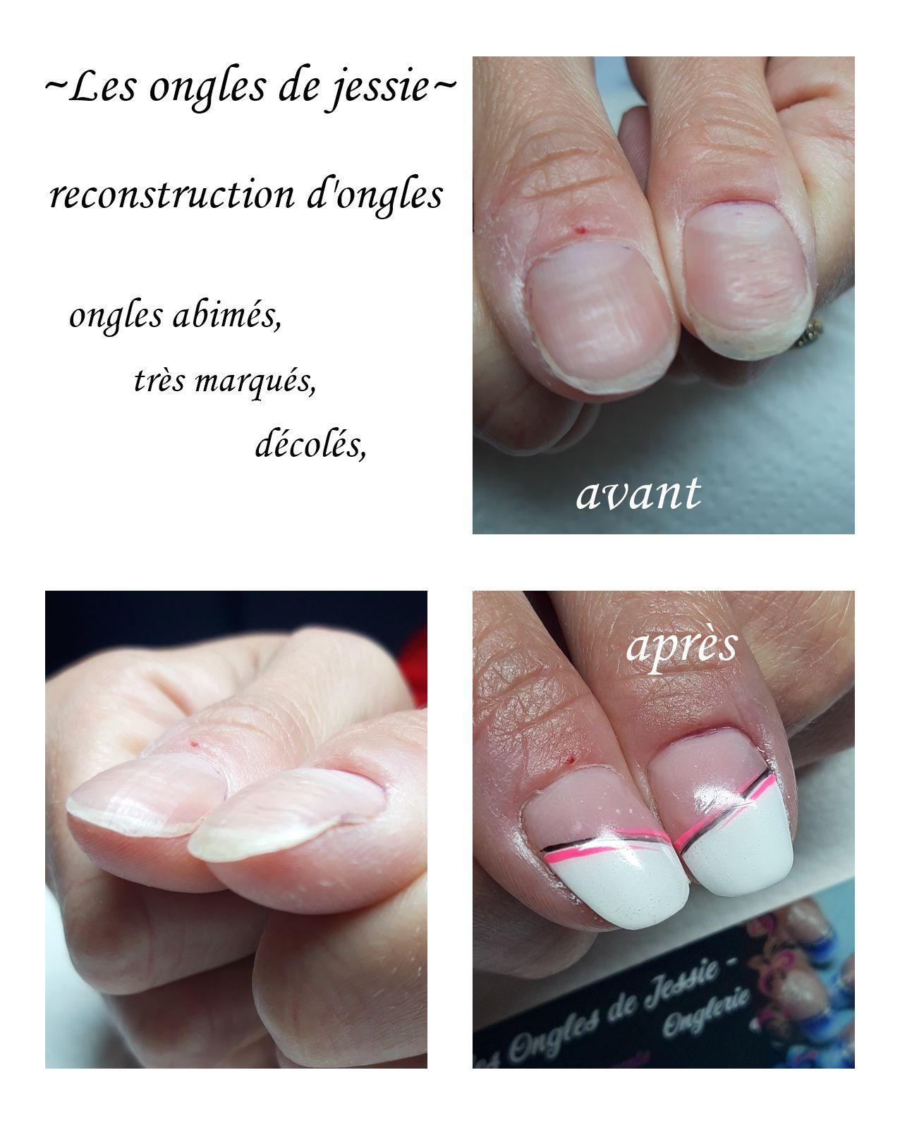 reconstruction d'ongles abimés