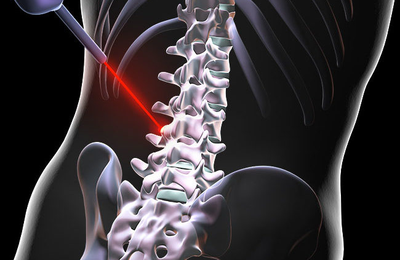 What Are The Services Best Spine Center Offers?