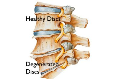 Degenerative Disc Diseases: Causes, Symptoms And Treatment