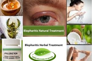 8 Natural Treatments for Blepharitis Eye Infection