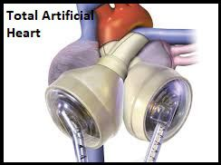 World Total Artificial Heart Market Top Players Analysis Report 2020-2025