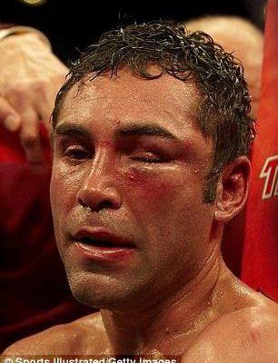 Oscar De La Hoya, 47 ans, veut à nouveau boxer sur le ring. Pensez-vous qu'il devrait rester à la retraite?