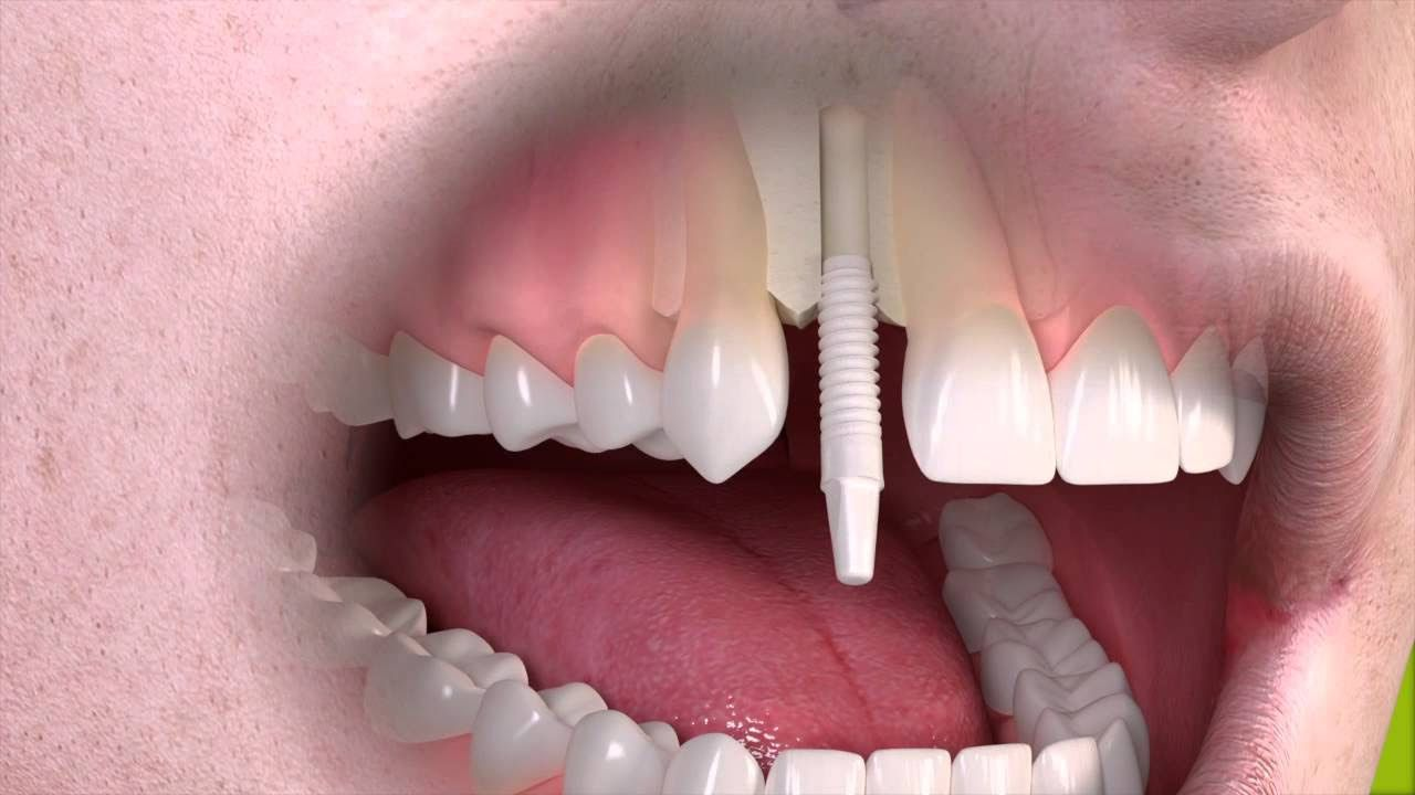 Dental Treatment For Individuals