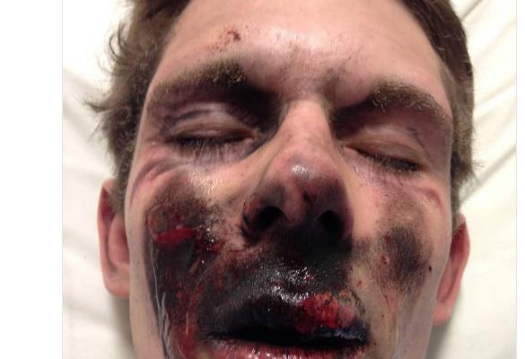 «Gilets jaunes»: Attention à la photo qui prétend montrer un blessé à Toulouse