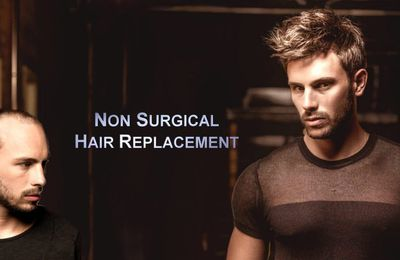 How Long Does A Non Surgical Hair Replacement Last?