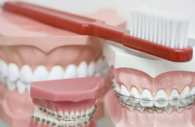 Why Does Orthodontists Diagnosing Oral Health And Wellness Conditions?
