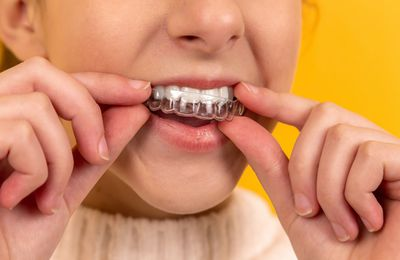 The Truth Concerning Invisalign Compared To Standard Braces