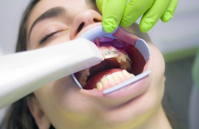 Periodontal Cracked Pearly Whites May Needs Cosmetic Dental Care Treatments