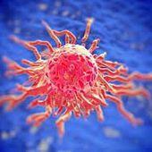 Hausse exponentielle du cancer dans le monde - Stratégie du chaos contrôlé