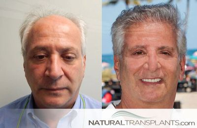 Visit our website and learn about Hair Growth Treatment Fort Lauderdale