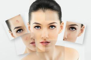 What is the difference between Photodynamic Therapy and IPL