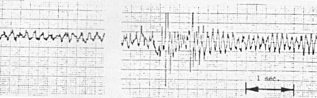 LA PROPULSION ELECTROMAGNETIQUE PULSEE (PEP)