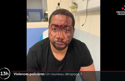 VIOLENCES POLICIERES ET RACISME DANS LA POLICE : VOEU D'UN DEMENTELLEMENT DE l'IGPN