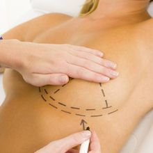 Cosmetic Surgery: What You Should Know