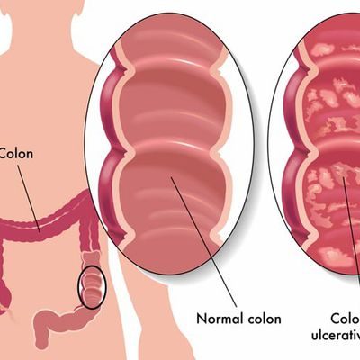 Ulcerative Colitis: Symptoms, Causes & Treatment.