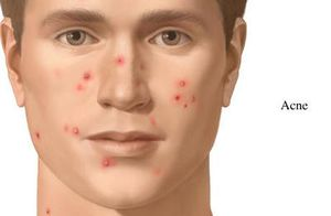 It established fact that how to get rid of zits