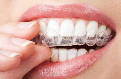 How do you cure and get rid of gingivitis?