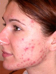 the process is most beneficial for those who konw how to get rid of pimples