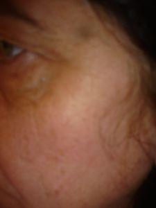 Une verrue près de l'oeil (remède) :