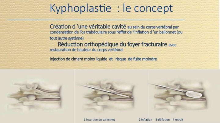 Les Fractures Vertébrales et des Os longs