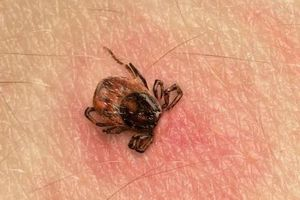 Maladie de Lyme: empoignade en France et nouvelles recommandations en Grande-Bretagne Smileus/istock...