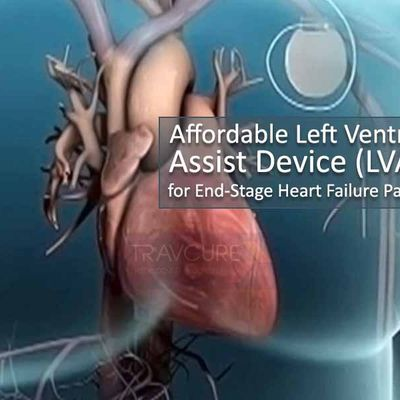 Affordable Left Ventricle Assist Device (LVAD) for End-Stage Heart Failure Patients