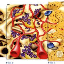 Traitement ORL régénératifs: cellules souches, facteurs de croissance et tissu adipeux riche en cellules souches / Pr Linino Di Rienzo Businco (Italie)