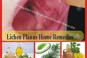 Natural Herbal Treatment and Home Remedy Remedies for Lichen Planus