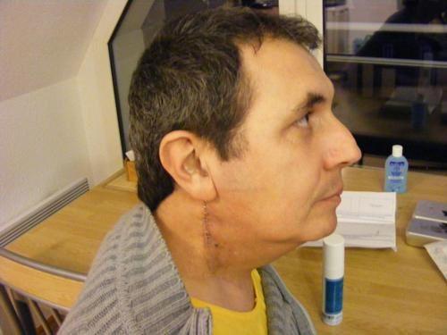 tabac t'abat tabac tue tabac pue tous cela est bien vrai malheureusement, depuis 2006 j'ai fait un cancer de l'amygdale puis 3 chimio, 3 radiothérapie, et 3 opération dont 2 lourde, je n'ai plus de goût , plus de salive , et je suis la vivant,