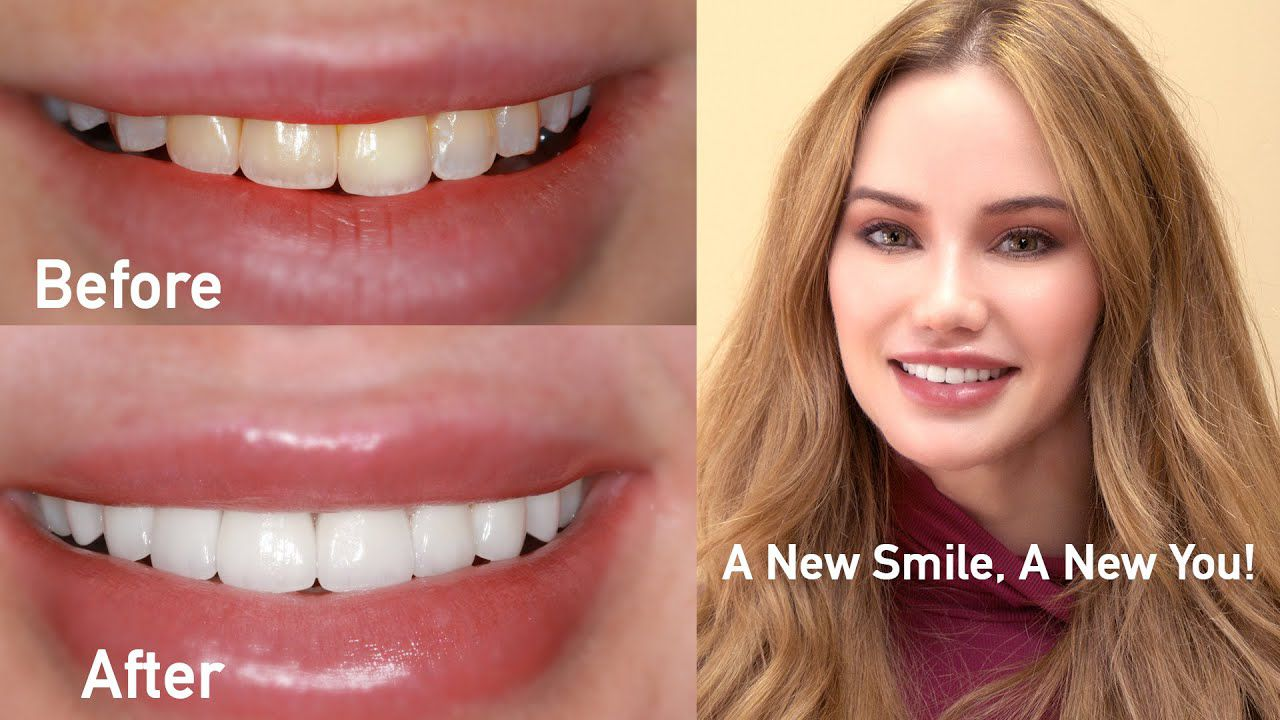 Aesthetic Dental Care - Improving Your Smile