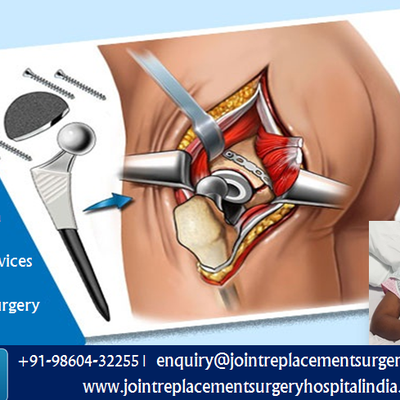 Nigerian Citizen Benefits From Exceptional Services Related To Hip Replacement Surgery In India