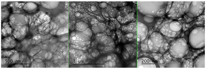 """La figure 6 montre une observation en microscopie TEM où l'on retrouve des particules d'oxyde de graphène réduit dans un vaccin Pfizer"""". La diffractométrie des rayons X révèle leur nature de nanoparticules cristallines de rGO à base de carbone."""