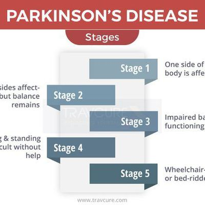 Affordable Treatment Options for Parkinson's Disease