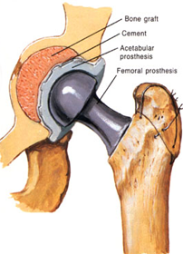Best Services for Joint Replacement In India, Gujarat, Ahmedabad, Rajasthan, Ajmer