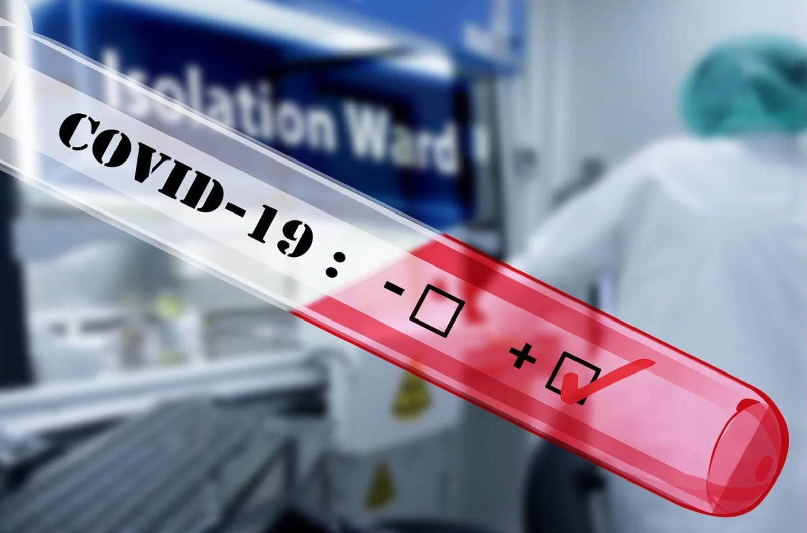 Luchon : jeudi et vendredi, les infirmières libérales vont effectuer des tests Covid-19