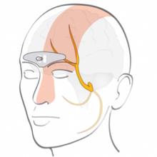 Cefaly :Traitement  de la migraine