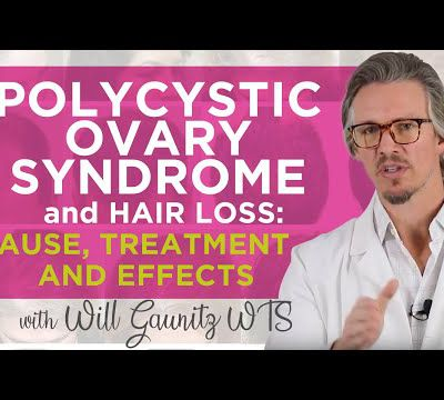 PCOS Hair Loss and how to fix it: Polycystic Ovarian Syndrome Hair Loss: Cause, Treatment, Effects