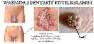 Obat tradisional kutil kelamin pada wanita bawang putih