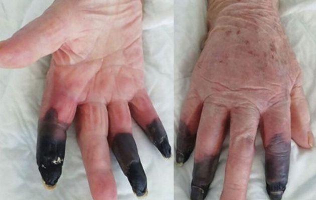 Les doigts d'un patient de Covid deviennent noirs dans une nouvelle `` manifestation grave '' choquante